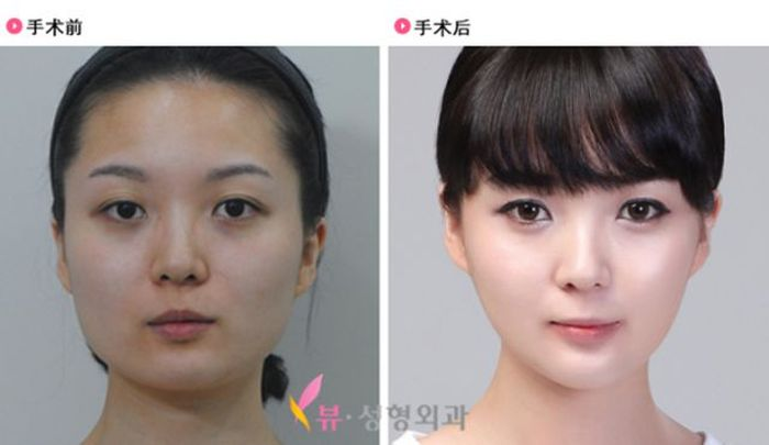 Antes e depois da cirurgia pl�stica coreana 2 42