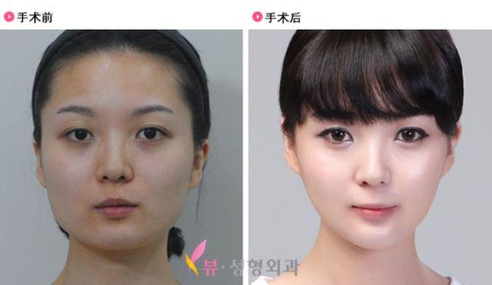Antes e depois da cirurgia plástica coreana 2 42
