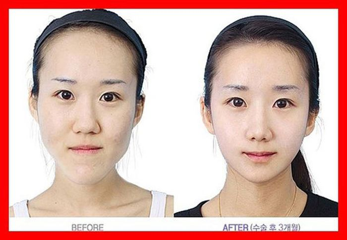 Antes e depois da cirurgia plástica coreana 2 43