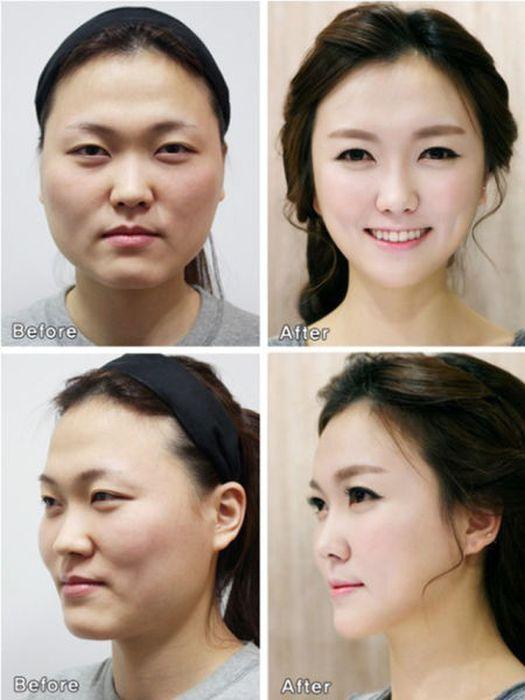Antes e depois da cirurgia plástica coreana 2 44