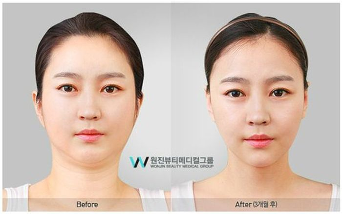 Antes e depois da cirurgia plástica coreana 2 45