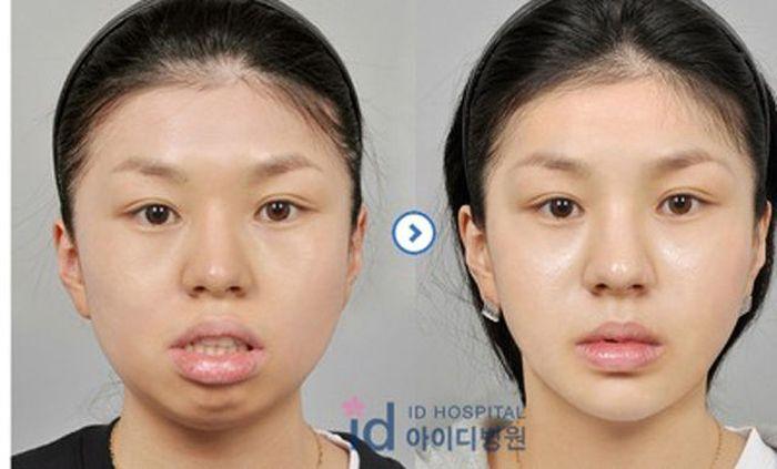 Antes e depois da cirurgia plástica coreana 2 46