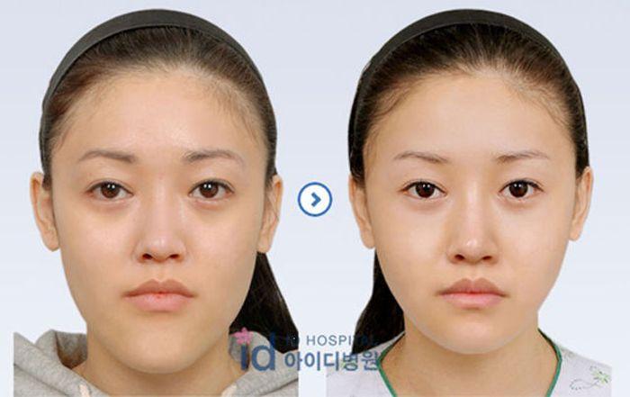 Antes e depois da cirurgia plástica coreana 2 47