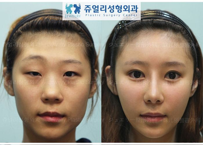 Antes e depois da cirurgia plástica coreana 2 48