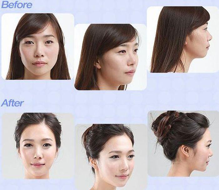 Antes e depois da cirurgia pl�stica coreana 2 49