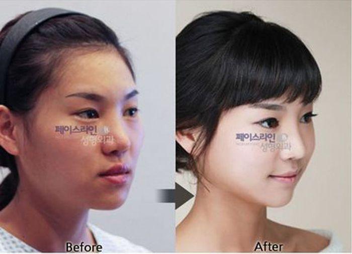 Antes e depois da cirurgia plástica coreana 2 50