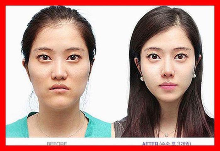 Antes e depois da cirurgia pl�stica coreana 2 51