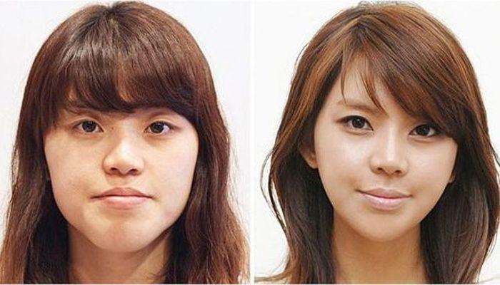 Antes e depois da cirurgia plástica coreana 2 52