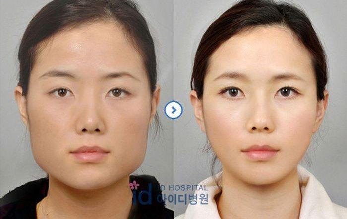Antes e depois da cirurgia plástica coreana 2 53