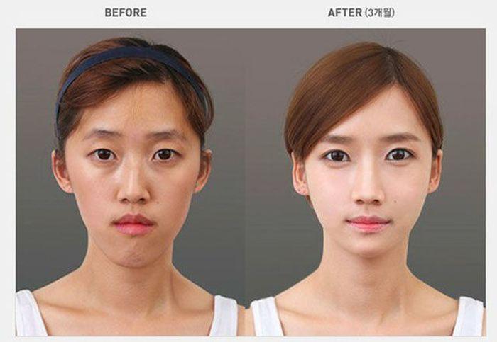 Antes e depois da cirurgia plástica coreana 2 54