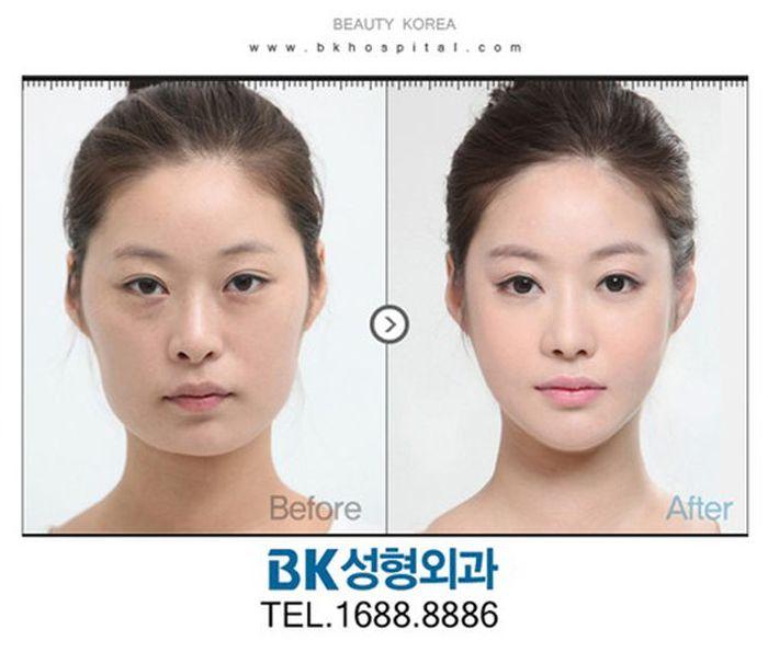 Antes e depois da cirurgia plástica coreana 2 55