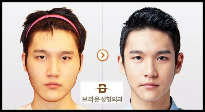 Antes e depois da cirurgia pl�stica coreana 2 56