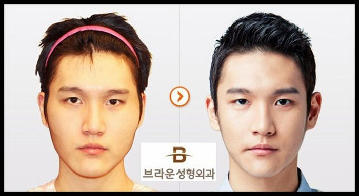 Antes e depois da cirurgia plástica coreana 2 56