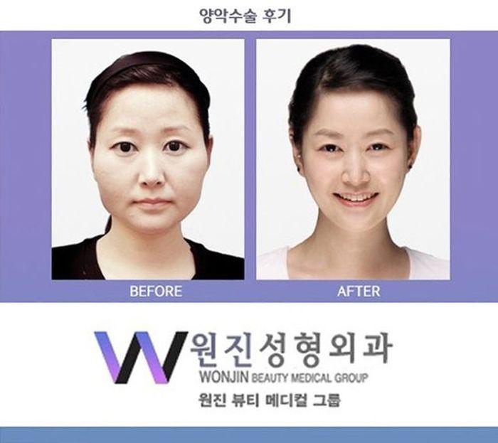 Antes e depois da cirurgia plástica coreana 2 57