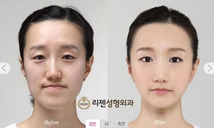 Antes e depois da cirurgia plástica coreana 2 58