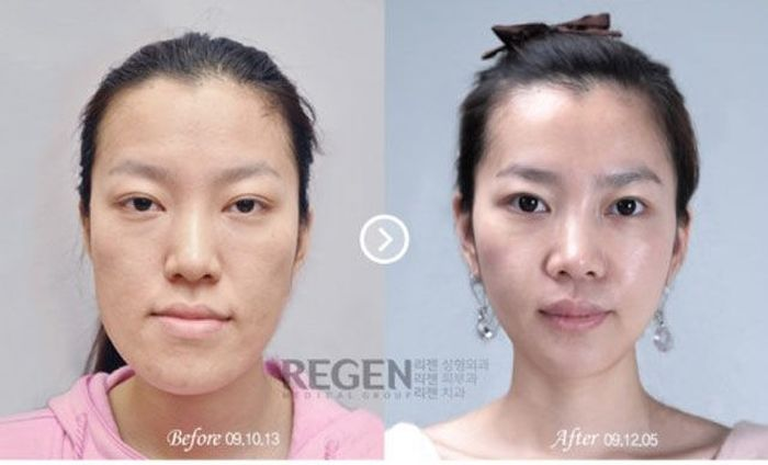 Antes e depois da cirurgia plástica coreana 2 59
