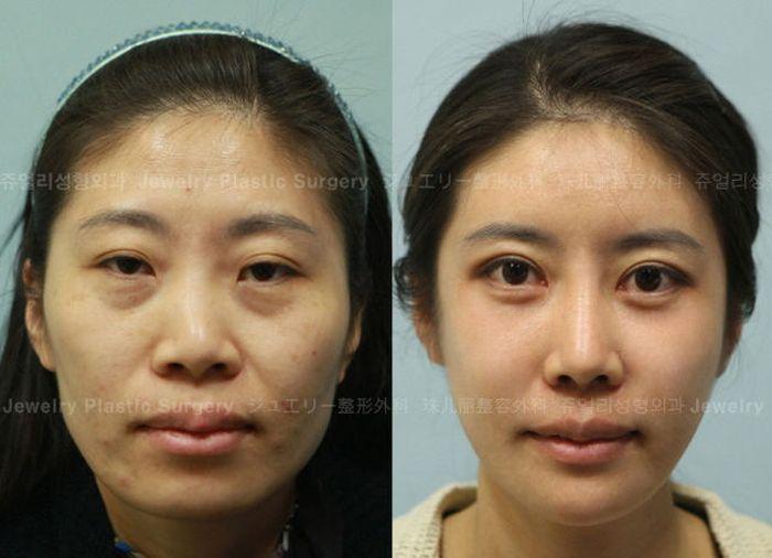 Antes e depois da cirurgia plástica coreana 2 60