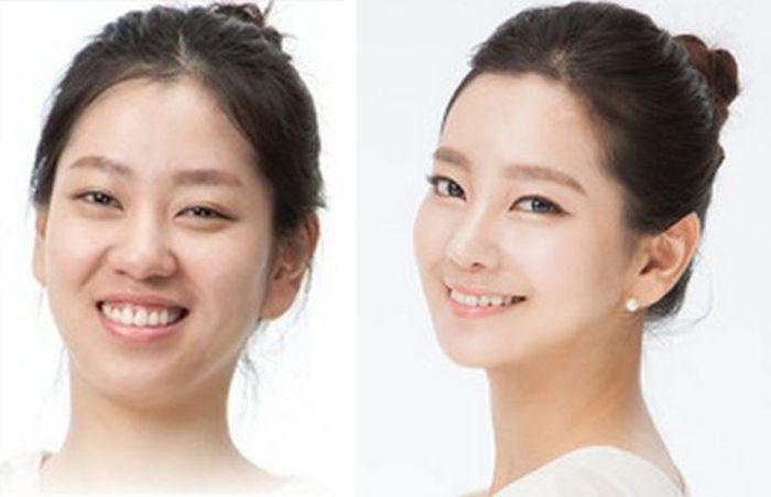 Antes e depois da cirurgia plástica coreana 2 61
