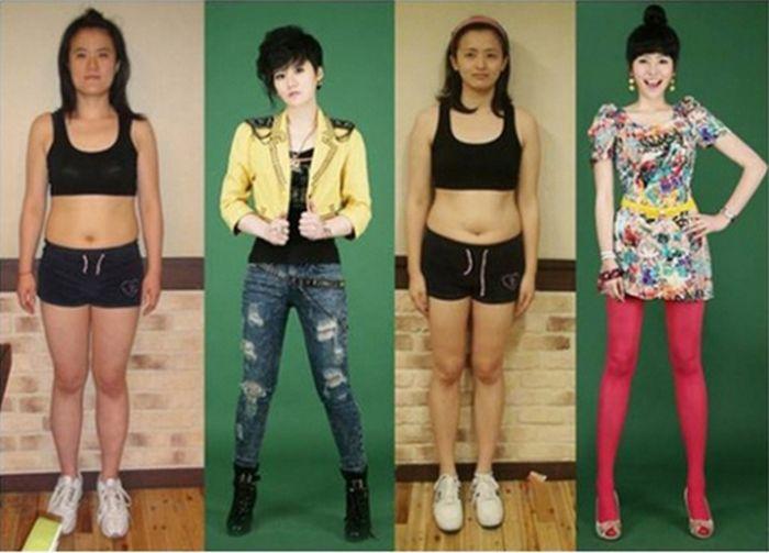 Antes e depois da cirurgia plástica coreana 01