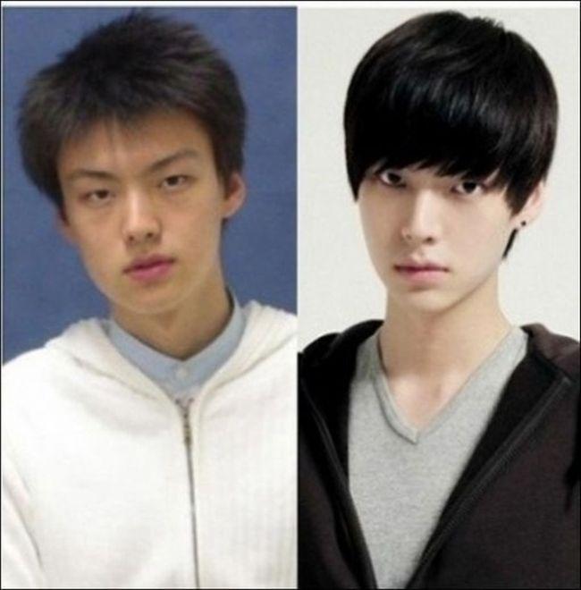 Antes e depois da cirurgia plástica coreana 02