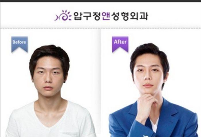 Antes e depois da cirurgia plástica coreana 03