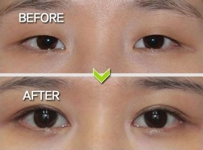 Antes e depois da cirurgia plástica coreana 04