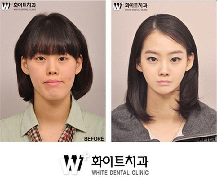 Antes e depois da cirurgia plástica coreana 05