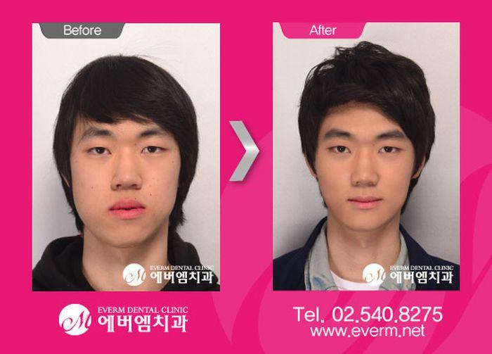 Antes e depois da cirurgia plástica coreana 06