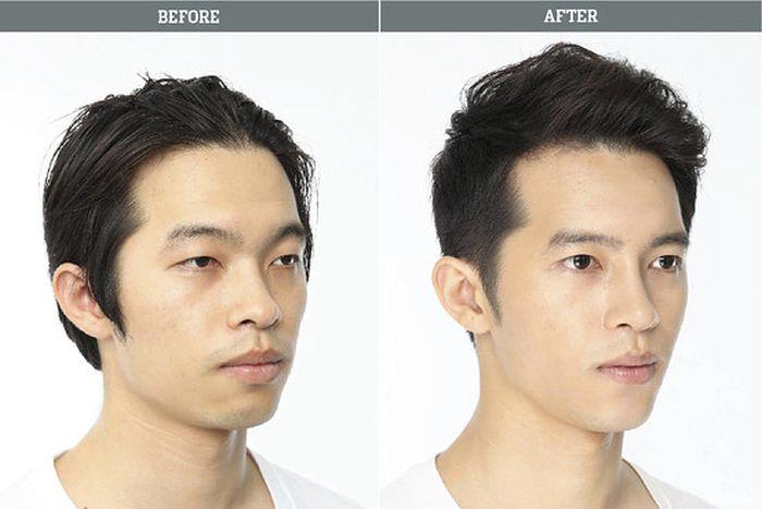 Antes e depois da cirurgia plástica coreana 07