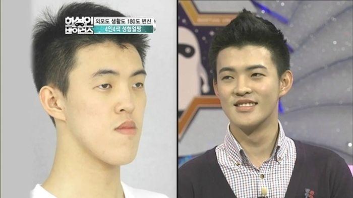 Antes e depois da cirurgia plástica coreana 08