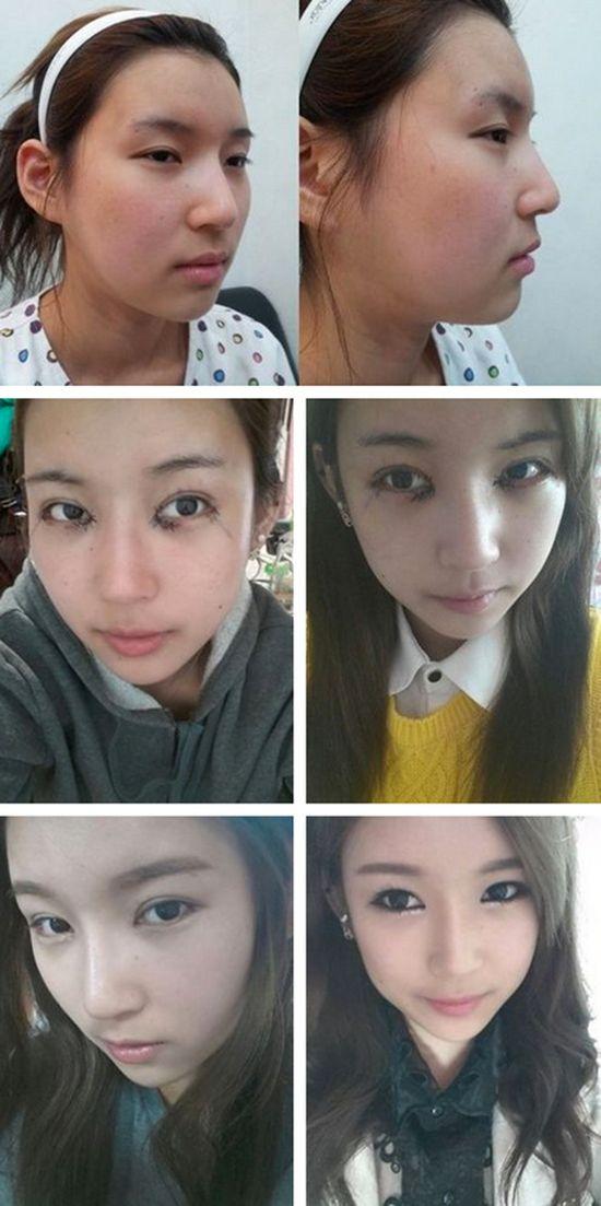 Antes e depois da cirurgia plástica coreana 09