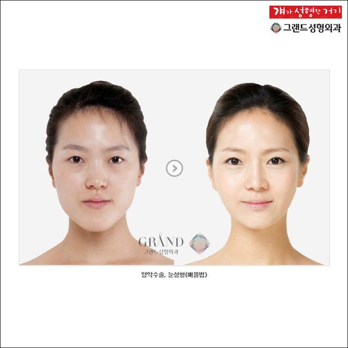 Antes e depois da cirurgia plástica coreana 10