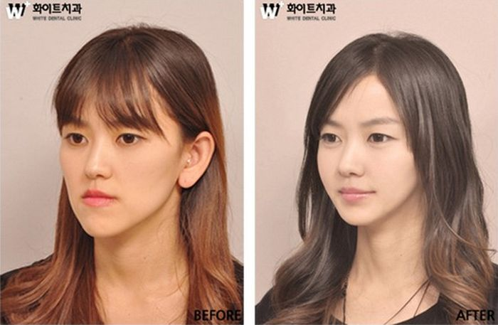 Antes e depois da cirurgia plástica coreana 11
