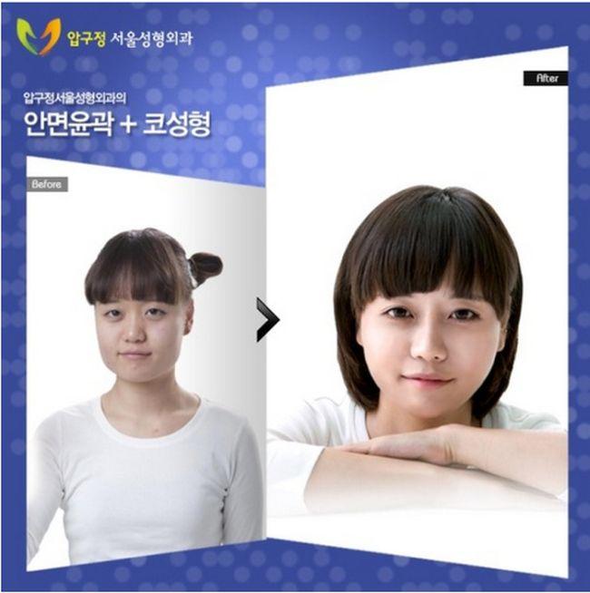 Antes e depois da cirurgia plástica coreana 12