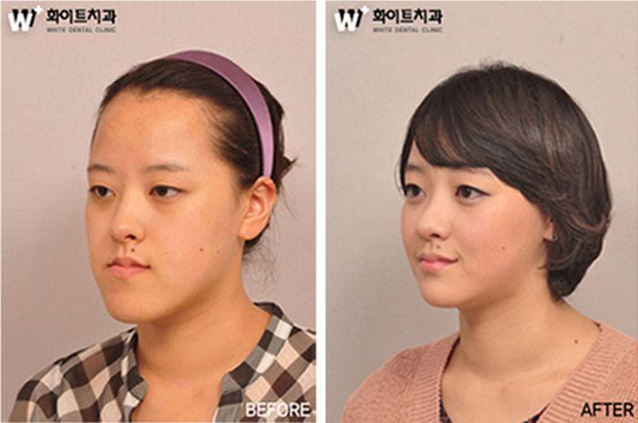Antes e depois da cirurgia plástica coreana 13