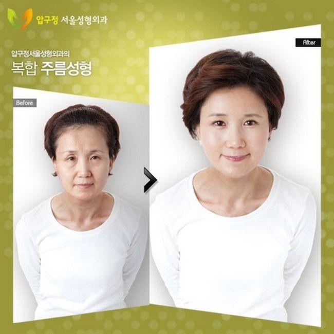 Antes e depois da cirurgia plástica coreana 15