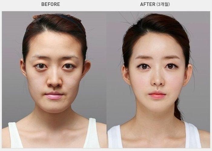 Antes e depois da cirurgia plástica coreana 16