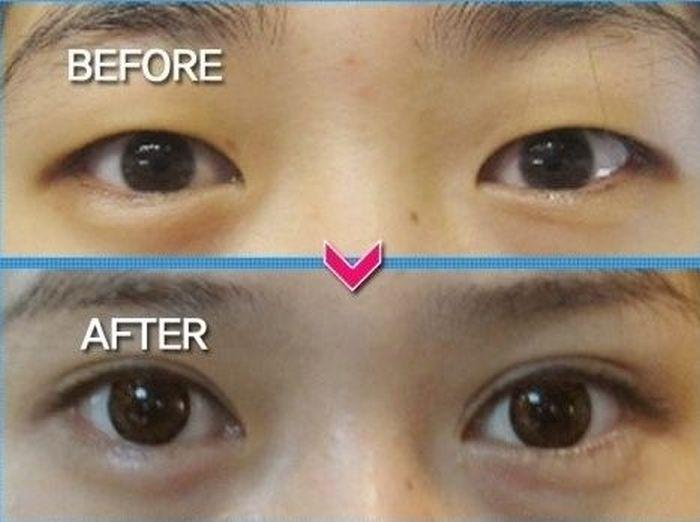 Antes e depois da cirurgia plástica coreana 17