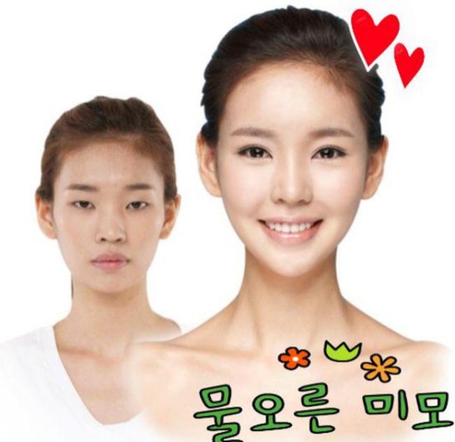 Antes e depois da cirurgia plástica coreana 18