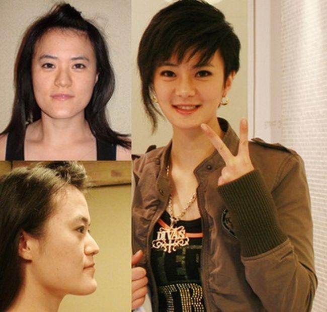Antes e depois da cirurgia plástica coreana 19