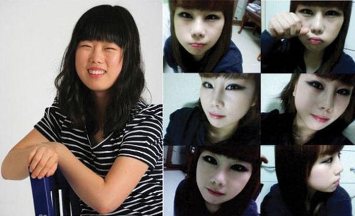 Antes e depois da cirurgia plástica coreana 20