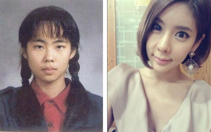Antes e depois da cirurgia plástica coreana 22