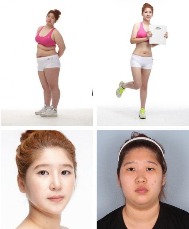 Antes e depois da cirurgia plástica coreana 23