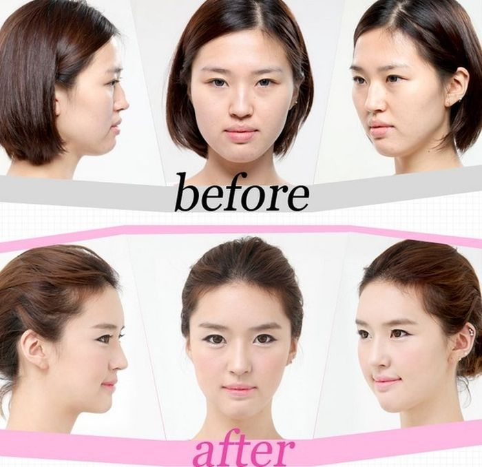Antes e depois da cirurgia plástica coreana 24