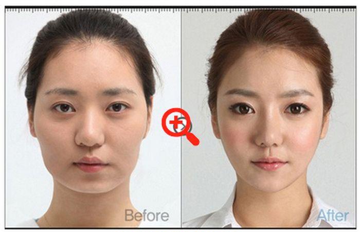 Antes e depois da cirurgia plástica coreana 25