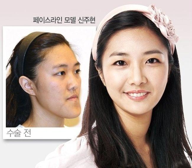 Antes e depois da cirurgia plástica coreana 26