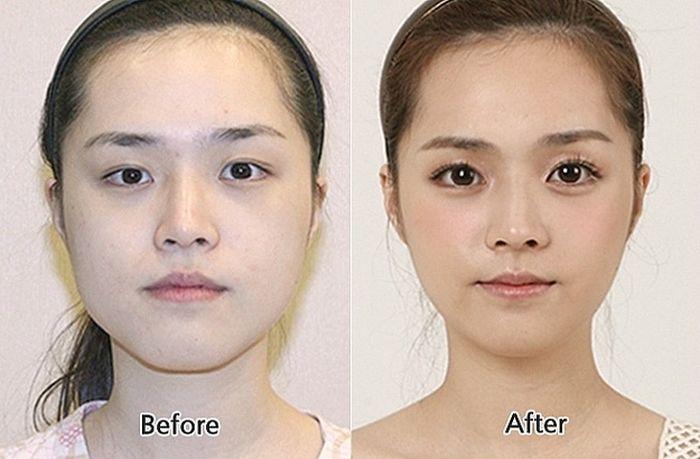 Antes e depois da cirurgia plástica coreana 27