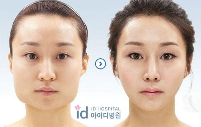 Antes e depois da cirurgia plástica coreana 28
