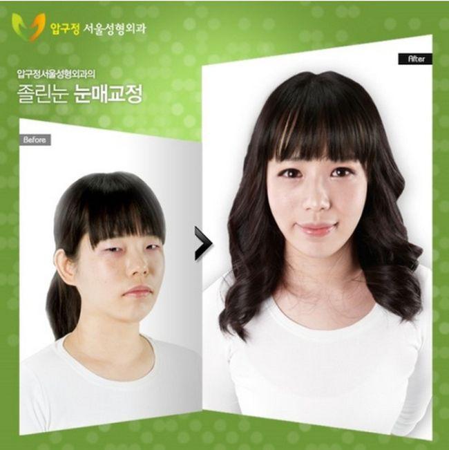 Antes e depois da cirurgia plástica coreana 29