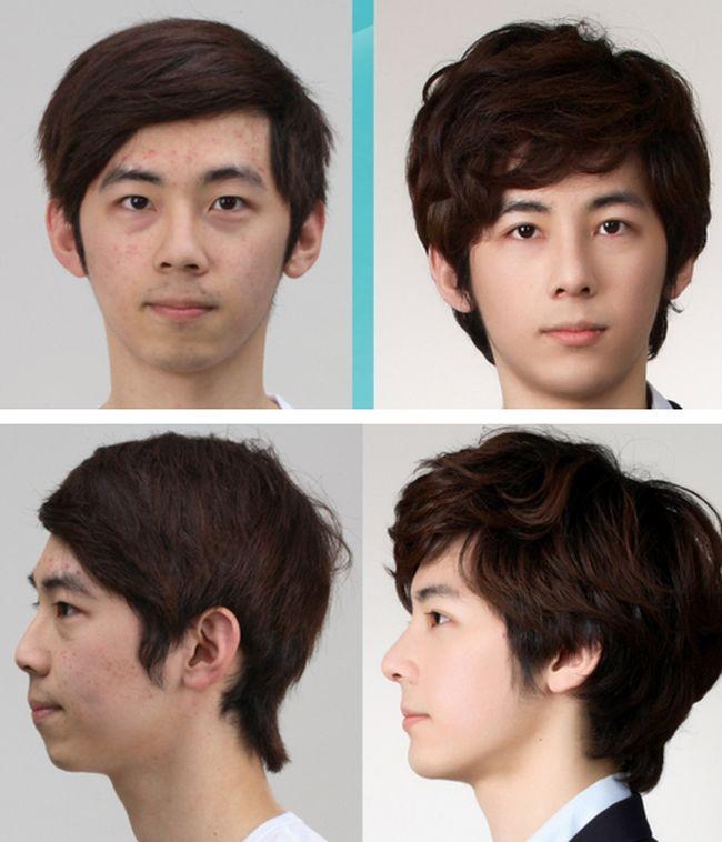 Antes e depois da cirurgia plástica coreana 30